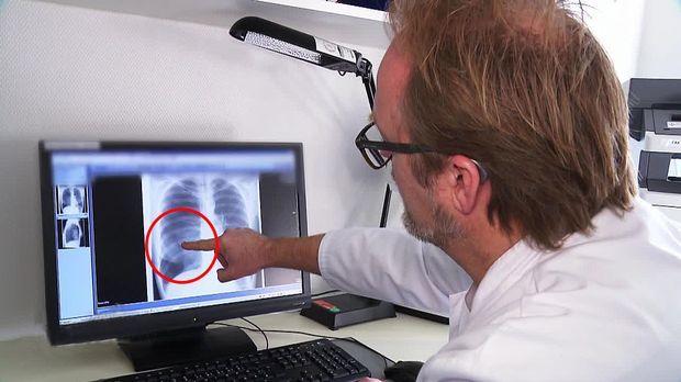 Achtung Notaufnahme! - Mittwoch: Gefährlicher Druckabfall In Der Lunge
