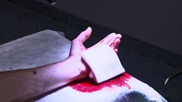 Achtung Notaufnahme! - Donnerstag: Millimeter-arbeit Bei Plastischer Hand-op